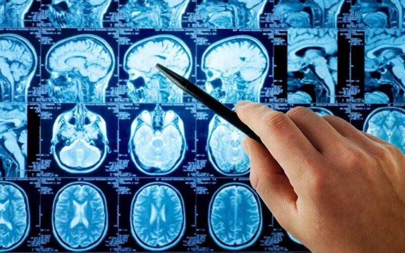 توسعه آزمایشگاه نقشهبرداری مغز توسط ستاد علوم شناختی