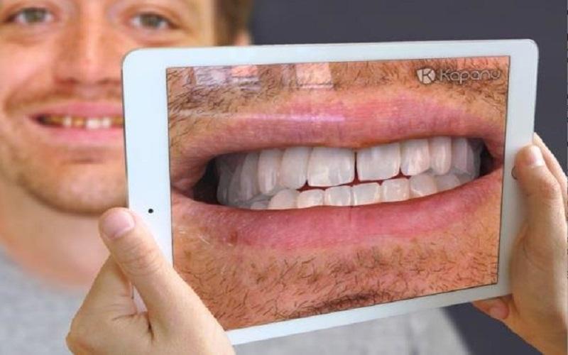 آینه مجازی لبخندتان را قبل از جراحی دندان نشان میدهد