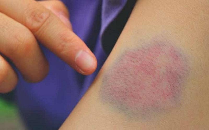 آیا کمخونی به شکل گیری کبودی منجر میشود؟