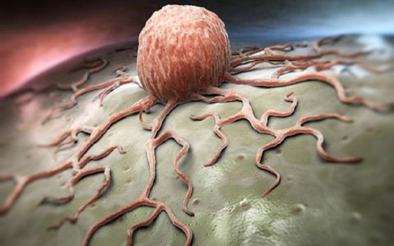 سرطان خون در کشور درحال افزایش است