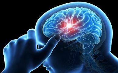 درمان های پیشرفته سکته مغزی نیازمند گسترش ارتباطات بین المللی است