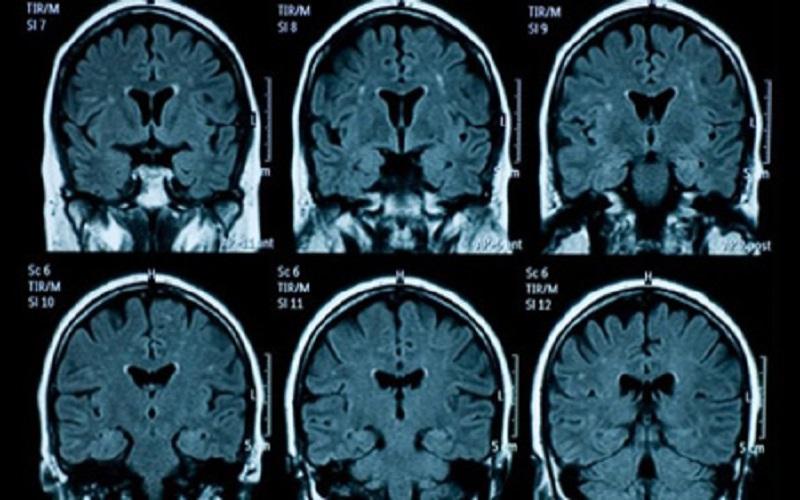 وسایل جراحی باعث انتقال آلزایمر میشوند