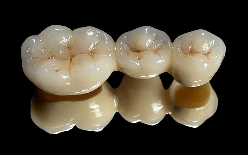 تلگرام بانک کشاورزی تغییر روش جراحی دهان با فناوری نانو - تجارتنیوز