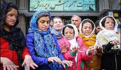 پیگیر روند درمان دختران شینآبادی هستیم