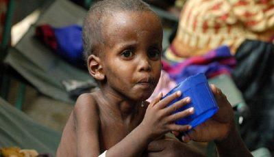 اشتباهات رایجی که باعث سوءتغذیه میشوند