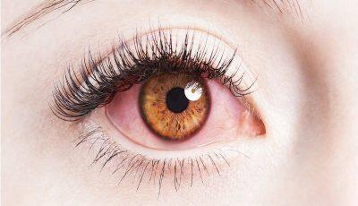 ضرورت آشنایی با شیوههای حفظ سلامت چشمها
