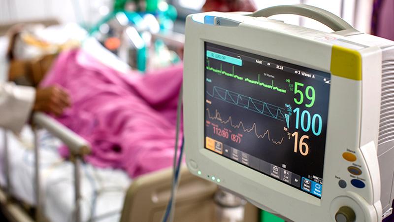 اتاق ICU