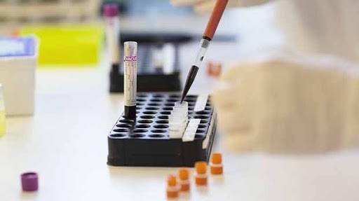 استفاده از آزمایشات مولکولی در تشخیص انواع بیماریهای عفونی