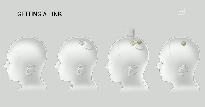 دساتگاه اتصال نورالینک