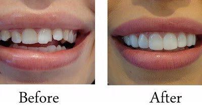 آشنایی کلی با کامپوزیت دندان