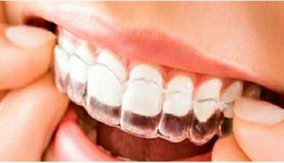 دکتر داوودیان کمپین لبخند زیبا به راه انداخت